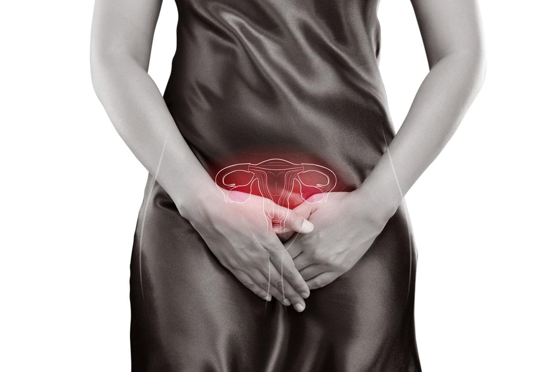poliquistico-ovarios.tlaxcala-sindrome-cancer-de-mama.