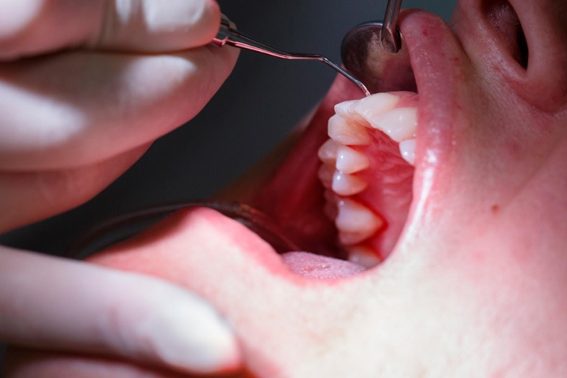 salud-dental-bucales-Tlaxcala-Covid-19-Coronavirus
